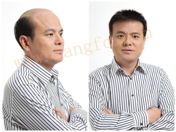北京 深圳/西藏哪里有卖超逼真男士假发?
