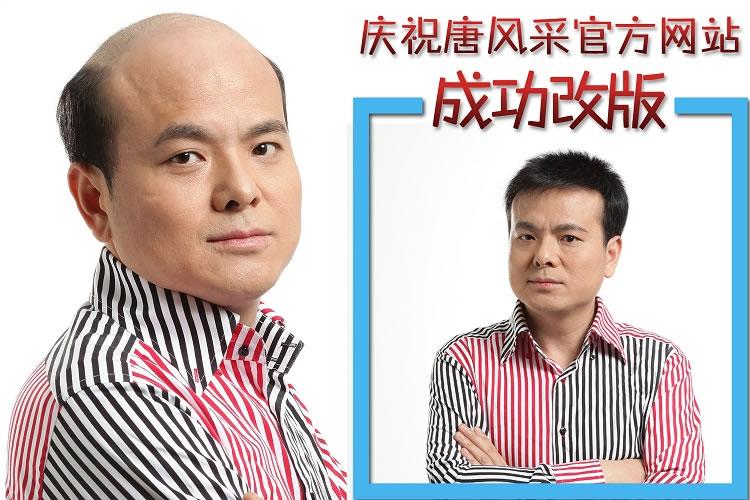增发改善头发稀少