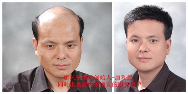 前额两边头发少_前额头发少怎么办