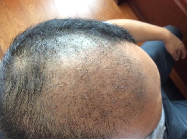 济南客户-头发类型植发失败