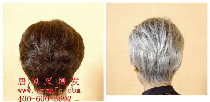 怎样才能让白发变黑?分享白发变黑方案!