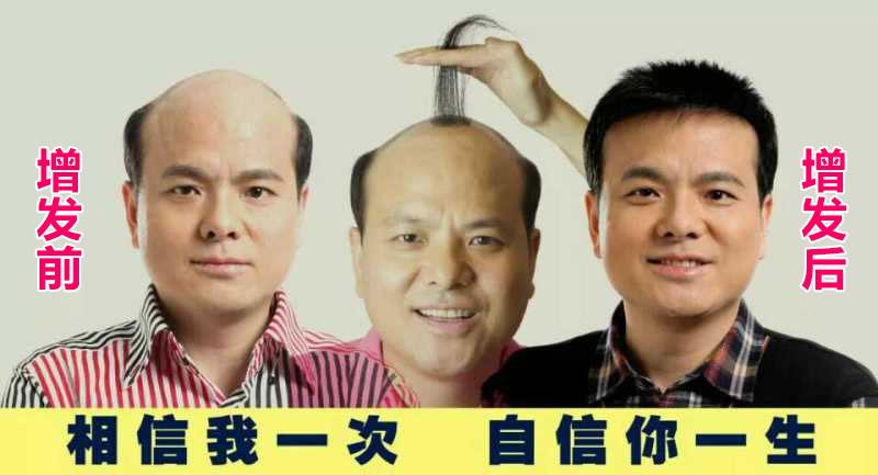 补头发的食物有哪些 电子时代如何防脱发