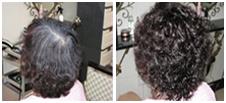 头发越来越稀疏,该怎么处理让自己头发看起来发量足