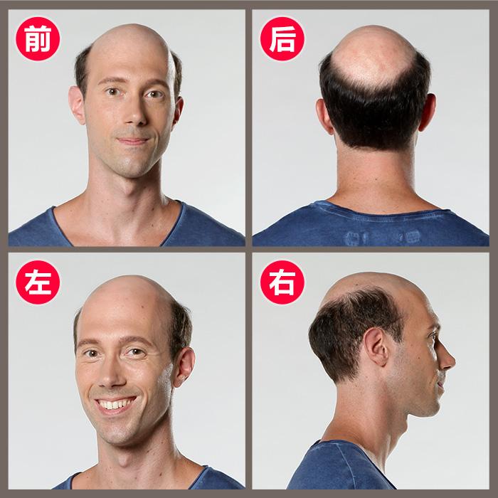 补头发的食物有哪些 如何改善严重脱发