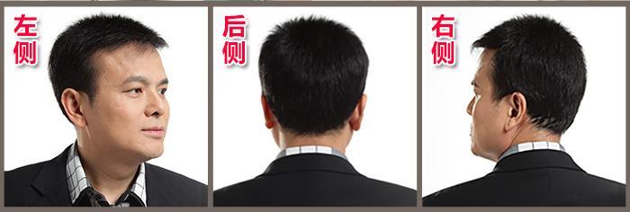 头发一边多一边少怎么办?对头发稀疏展开反击战!