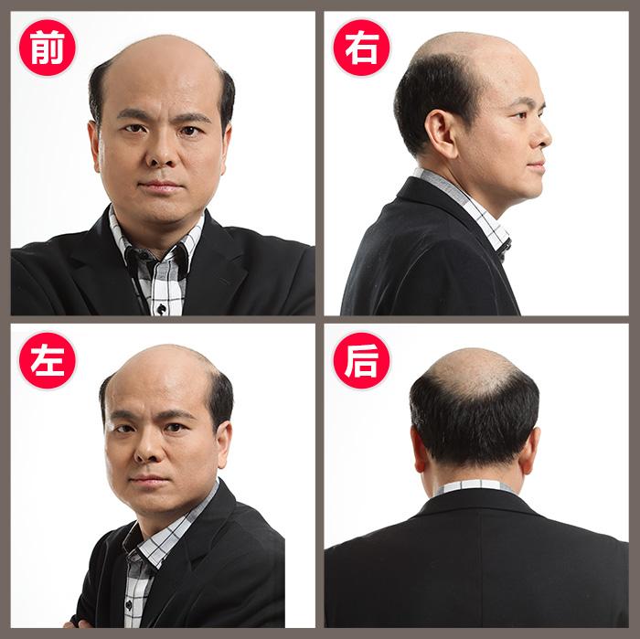 种头发价格,种植头发多少钱?
