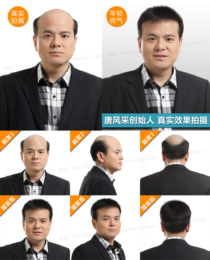 包头男士假发首选唐风采 脱发不仅是形象问题
