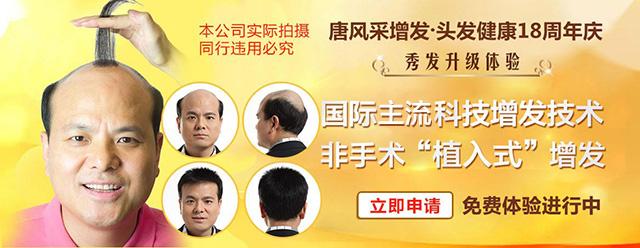 苏州高档假发定制 专业解决头发形象问题