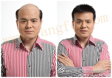 西安织发店日趋受宠成脱发、谢顶新选择!