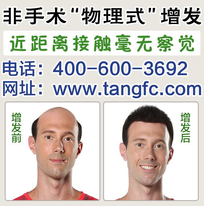 游戏男别为头发困扰,唐风采上海补发机构为您解决问题!