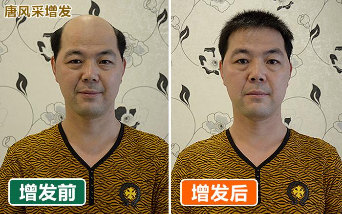 温州自然织发效果更真实 你还在用机制假发?