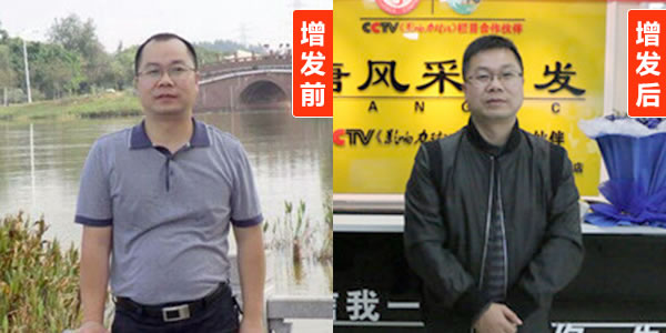 北京男士补发哪里好?隐形无痕的效果就选它!