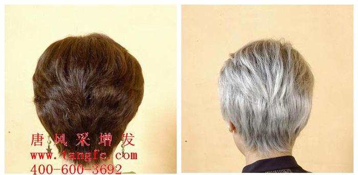 减少白发除了食物调理,还有什么快速靠谱的办法?