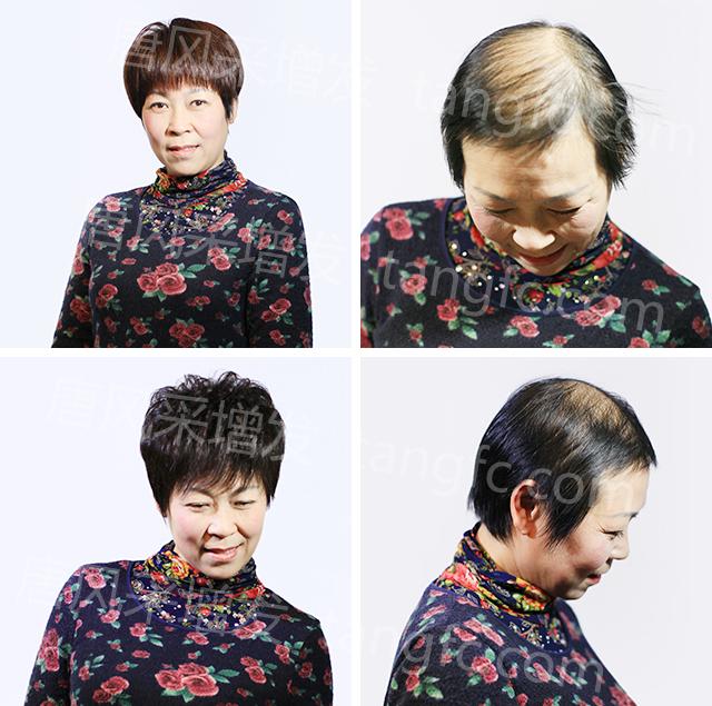 """柳州做假发,从心出发,""""发""""现自己!"""