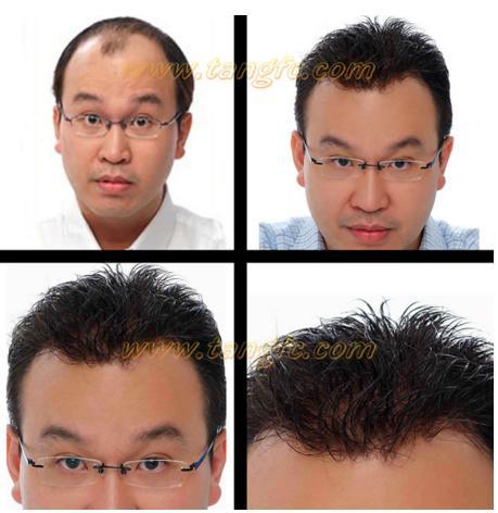 来自NASA的黑科技生发头盔,秃顶有救了?