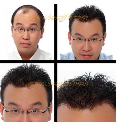 哪家假发适合脱发人?金华哪里有假发专卖店?