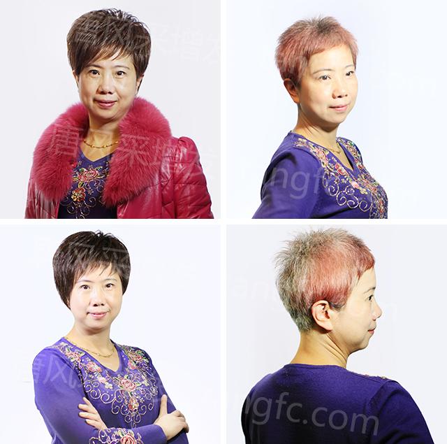 拯救你的脱发白发,遇见美好的自己!