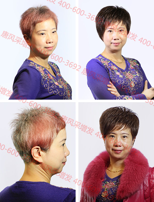 白发女郎选择哪一家织发补发店比较好?