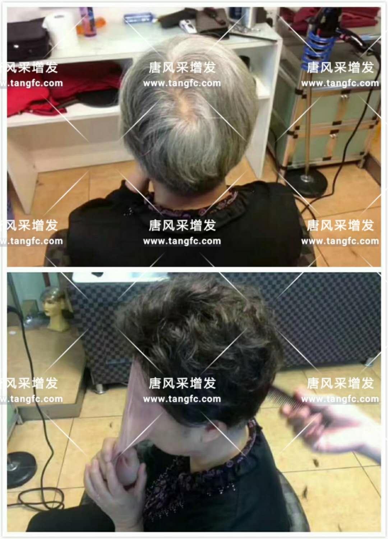 为脱发者解千愁,增发前后的惊人对比!