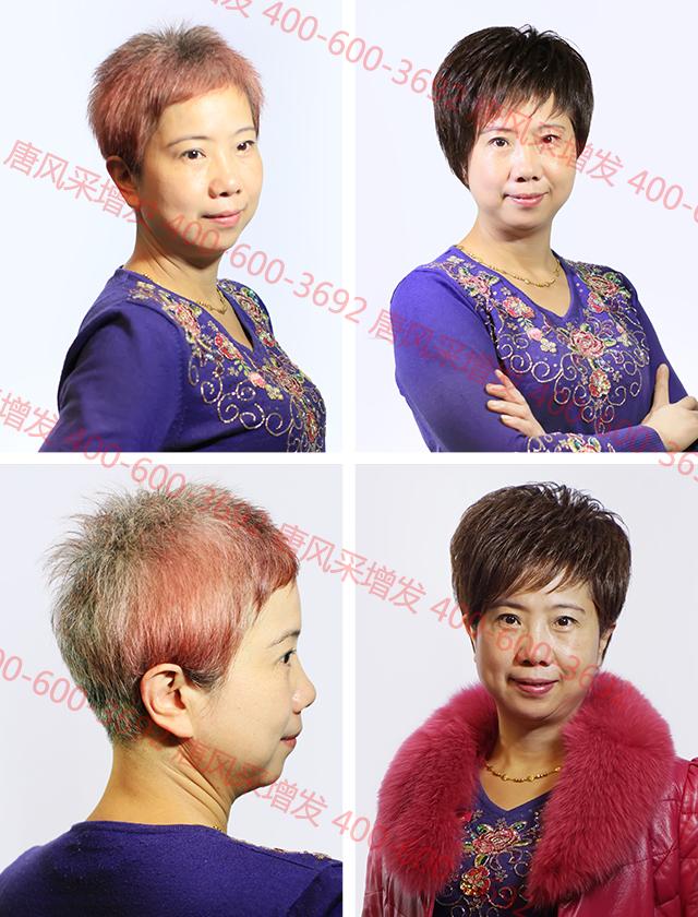 崇尚健康的乌鲁木齐假发店,用物理方式遮盖白发!