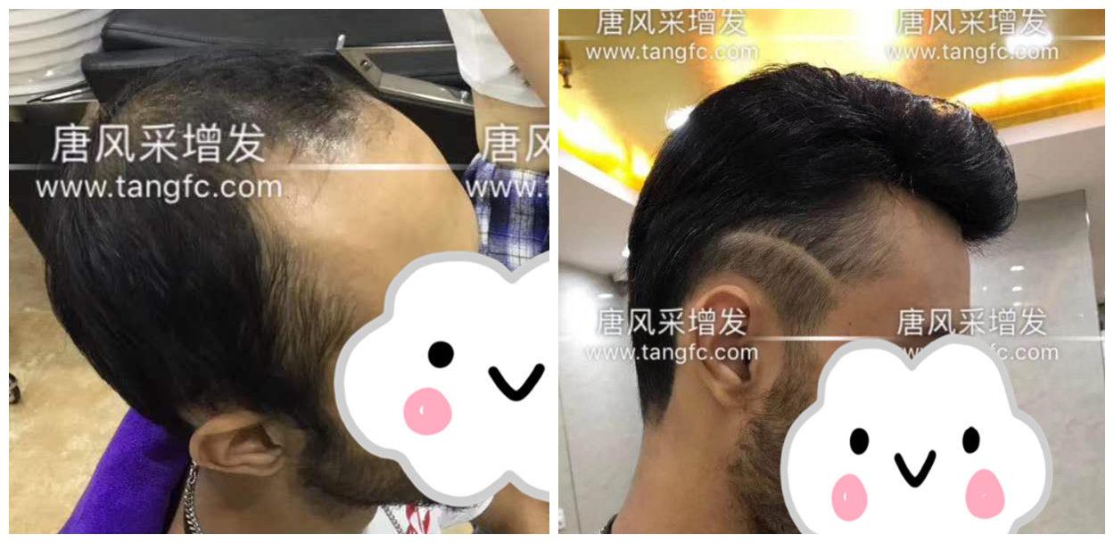 男士假发容易看出来吗?看看做过头发的发友怎么说!