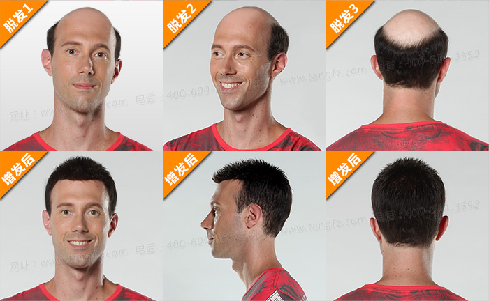 稀发不哭!终于知道头发稀疏可以这样做!
