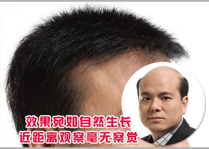 别再嘲笑我,我的秃顶已经解决了!