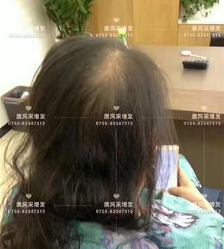 让头发一直好好的,唐风采就是这般任性!