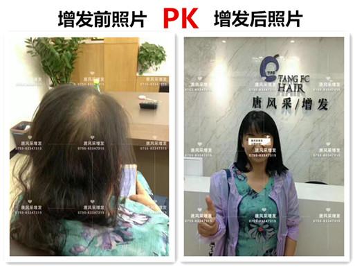 头发稀少也能拥有一头好发型,不信请看!