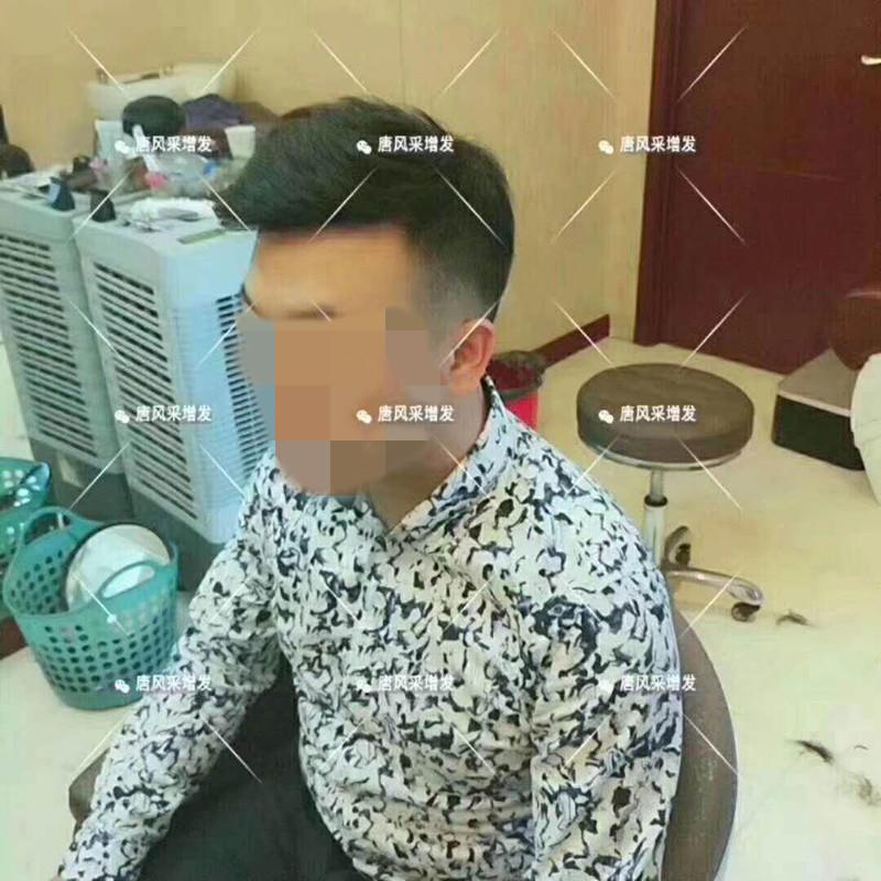 台州真发假发哪有卖,夏天戴假发会闷热吗?