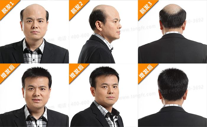 有了对比才显闪光点,解决秃顶还是织发!