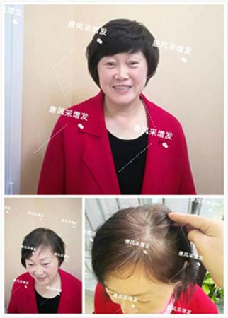 老太太假发图片,选择唐风采给自己一个变年轻的机会!