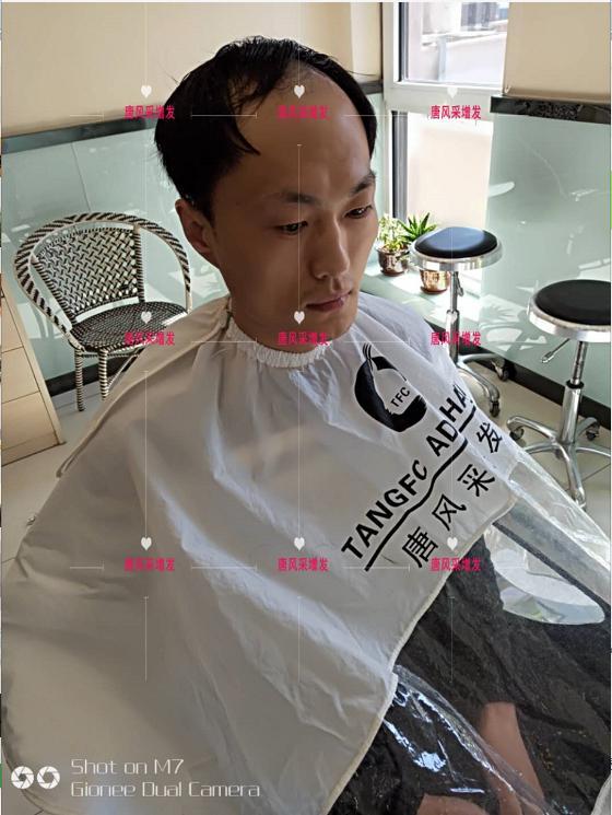 男士假发套价格贵吗?买多少钱的效果看起来才逼真?