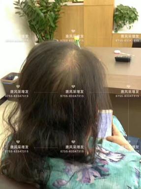 头发稀少了,我该拿什么来拯救你?