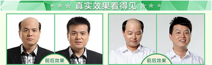 台州假发专卖选什么品牌?秃发谢顶用假发好吗?