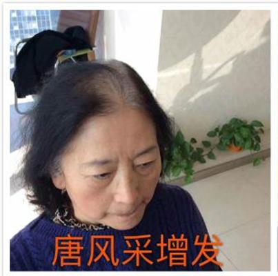 中老年女士假发仿真设计,快速还原美丽秀发!