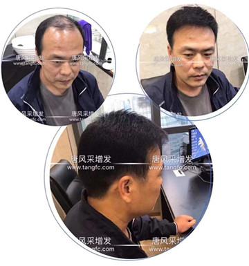 脱发如何补发效果真实,去哪里补发比较好!