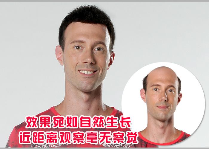 台州哪里有卖假发的,逼真效果怎么样?