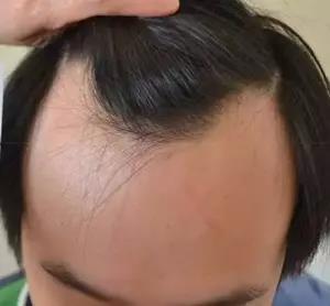防偷防盗防不了发际线, 变秃顶了怎么办?