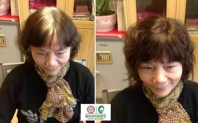 治白发不如遮白发,这个方法最有效!