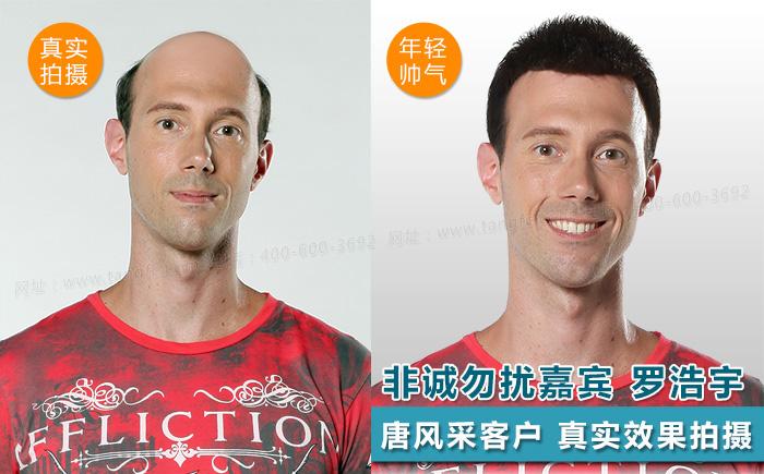 台州哪里买假发好,头发稀疏适合什么样的假发?