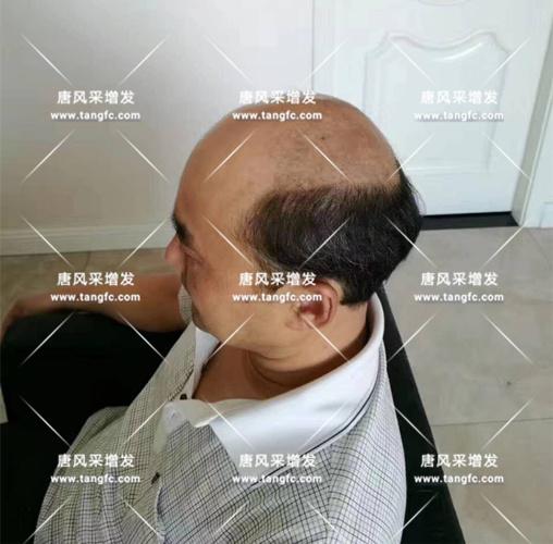 老年短假发全真发的好吗? 主要是用来遮白发的!