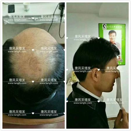 头发稀少,头发怎么才能变浓密?