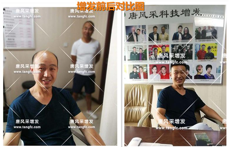 郑州店案例赵先生增发前后对比图