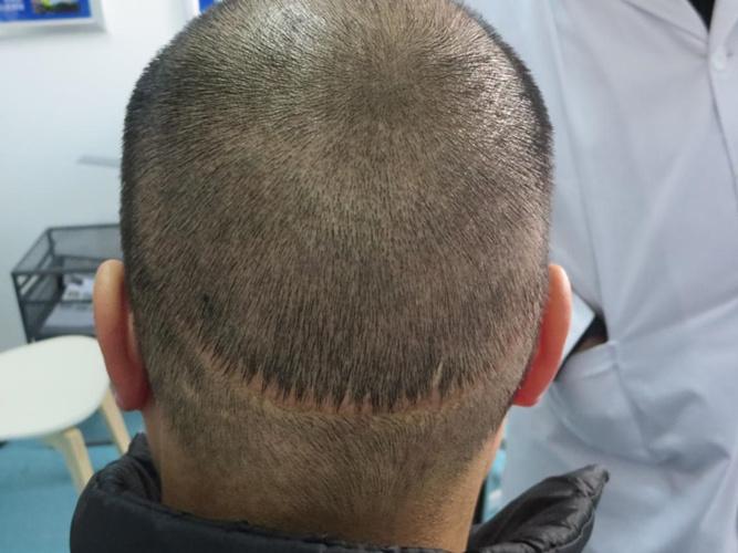 植发后遗症