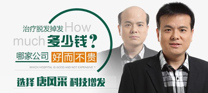 西宁买隐形假发哪家好?多少钱才能买到?