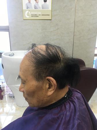 刘叔脱发的样子