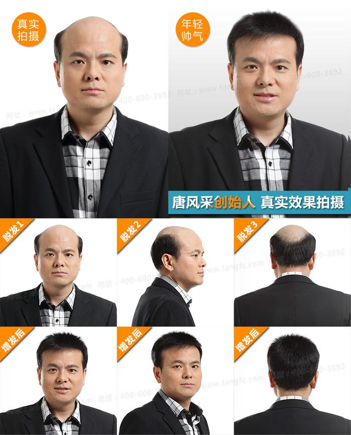 西宁哪里有卖假发的,什么品牌的假发性价比高呢?