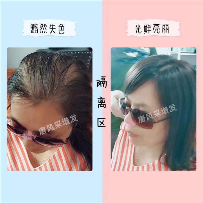 女性头发对比反差