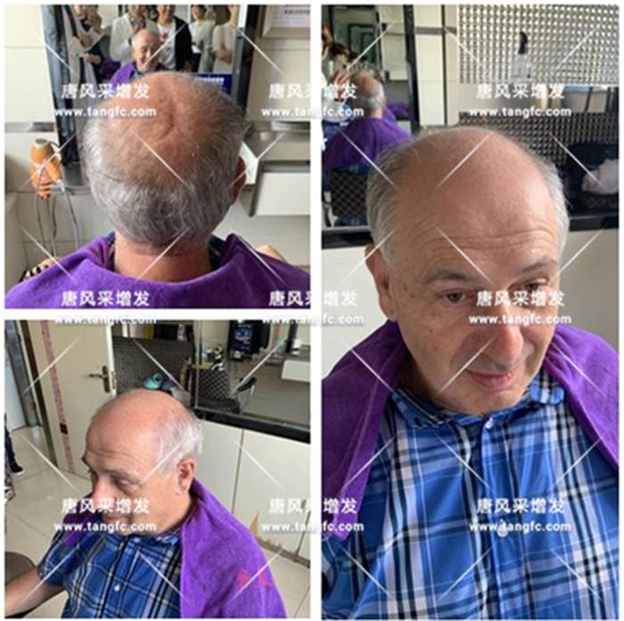 家族遗传性脱发